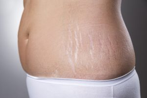 Treat stretch marks with fasting